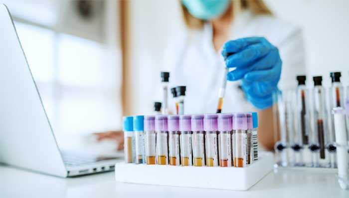 آزمایش ساده و کمهزینه کووید-19 با کمک نشانگرهای ایمنی