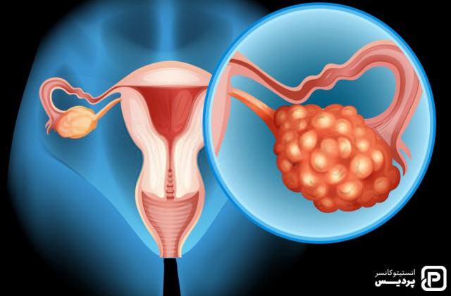 کشف هدفی امیدبخش در درمان سرطان تخمدان