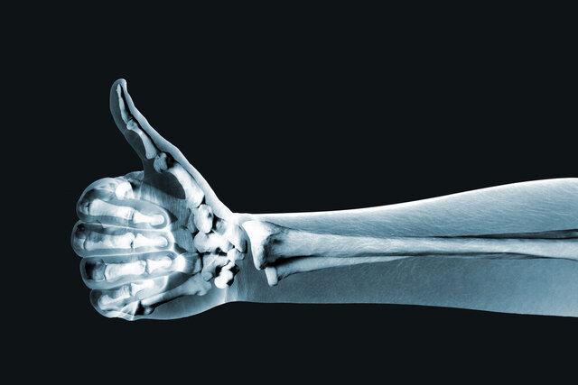 تصویربرداری اشعه ایکس با ابزار پوشیدنی!