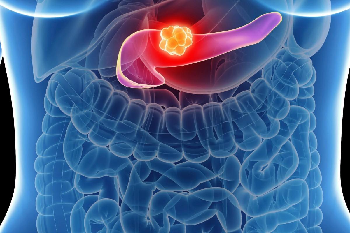 چگونه سلول های سرطانی پانکراس از درمان های دارویی طفره می روند